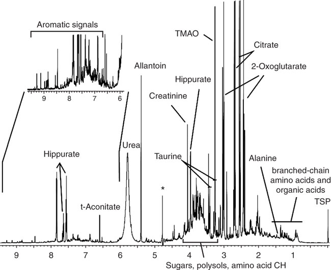 600 MHz 1H NMR spectrum of control rat urine, displaying hundreds of resolved peaks.