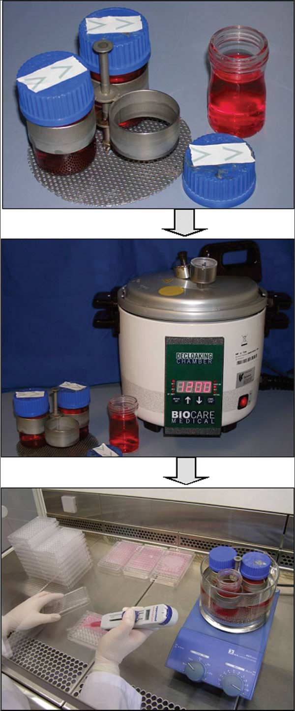 Tools for routine preparation of agarose-coated 96-well plates.